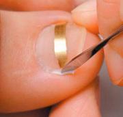 Как избавиться от вросшего ногтя в Алматы?