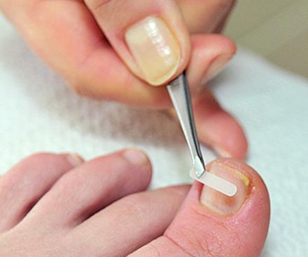 Коррекция вросших ногтей.аппаратный педикюр, маникюр.наращивание ногтей