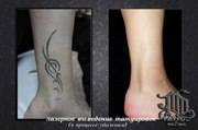 Лазерное выведение татуировок