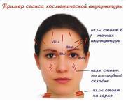 Аккурунктурная пластика лица